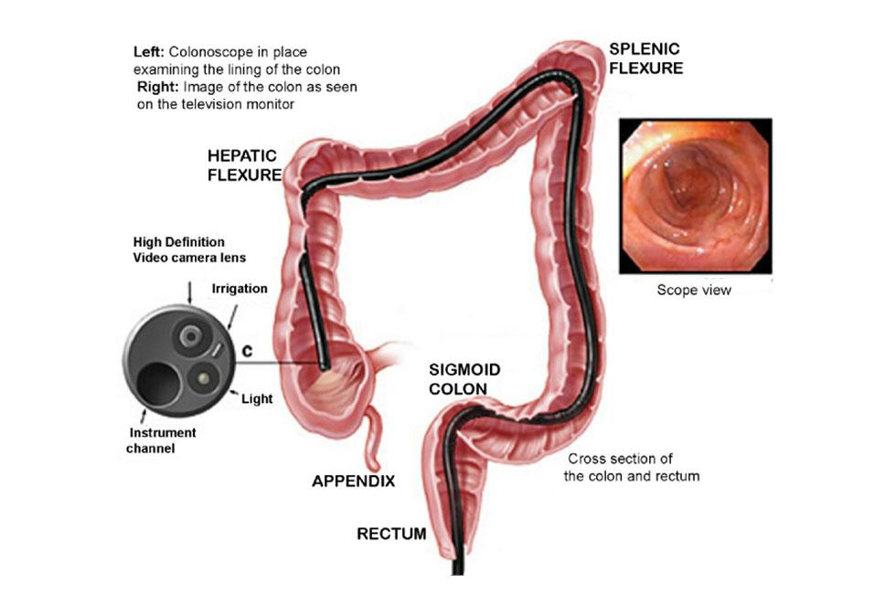 Colonoscopy-pageresize