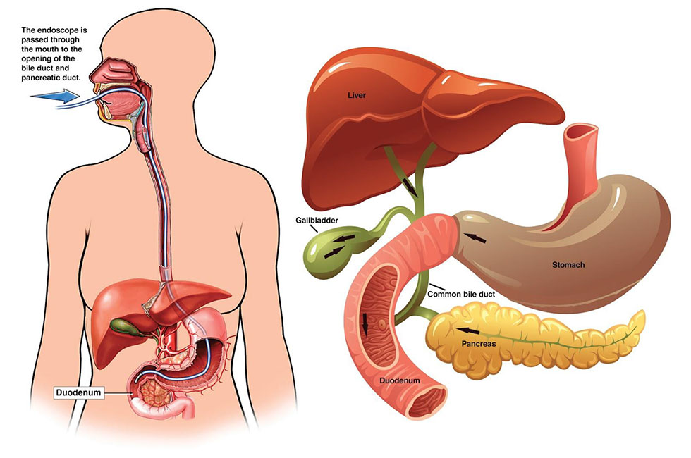 ERCP-page
