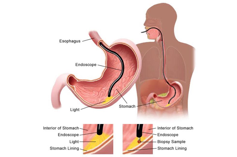 Gastroscopy-page